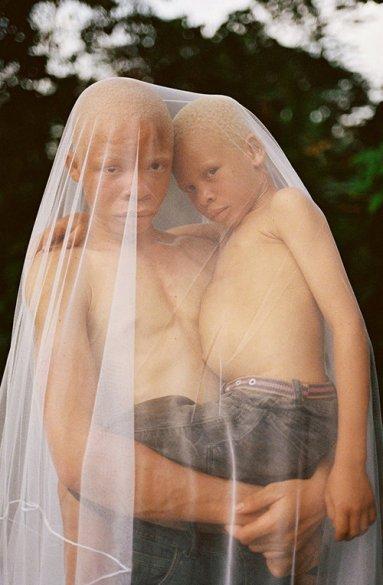 00005_06_albino_brothers_annebarlinckhoff.com